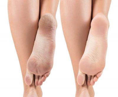 voeten eelt verwijderen met eeltsokken
